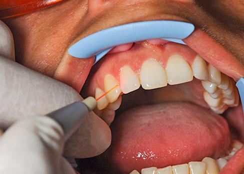 La genetica può amplificare gli impatti negativi dell'obesità sulla malattia parodontale.